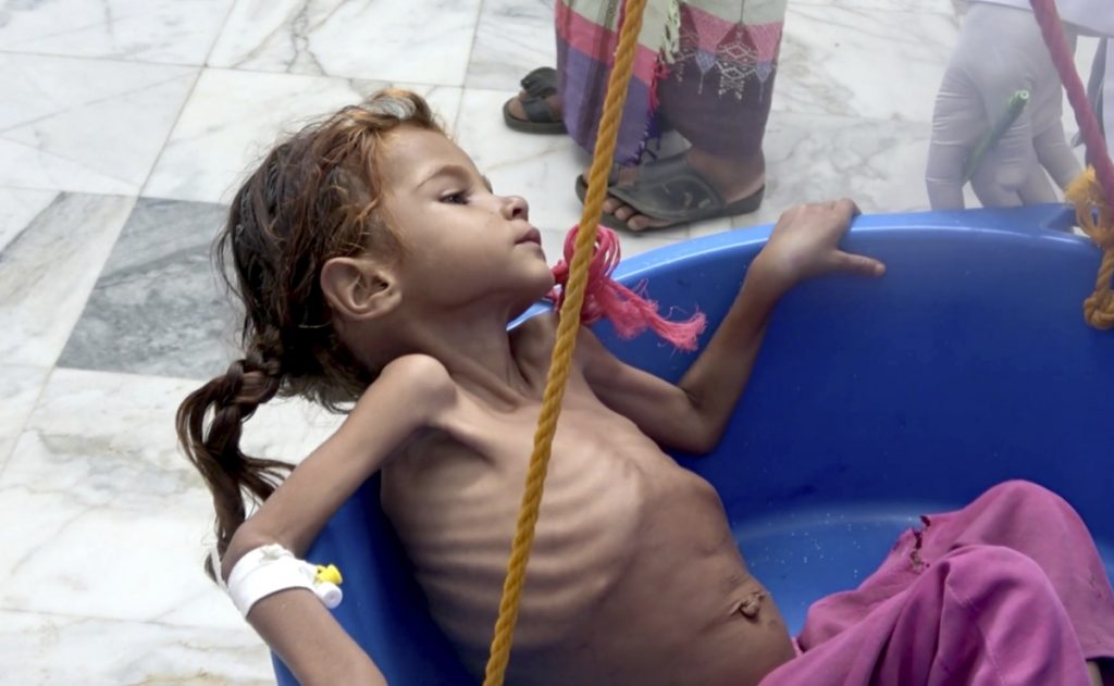 A severely malnourished girl is weighed at the Aslam Health Center in Hajjah, Yemen, in August. About 2.9 million women and children are in danger of starving to death.