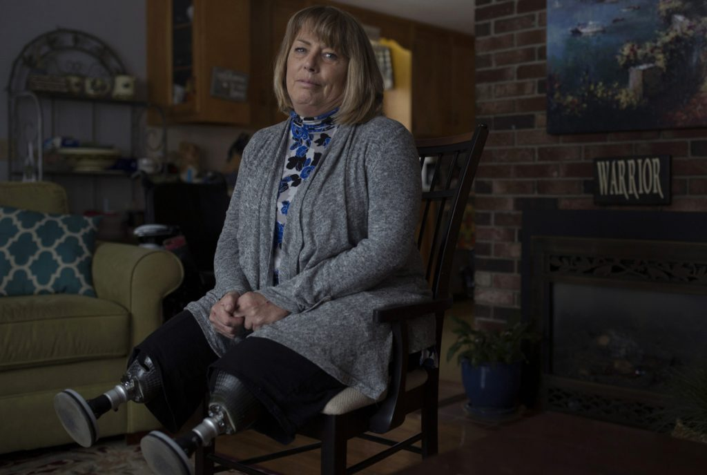 "Terri Anthoine poses at her home in Portland on Tuesday. Anthoine lost both her legs when a car struck her last December, but refuses to hold a grudge and did not want the elderly driver sent to prison. ""I can't be angry, because I won't ever get better. You just have to let the anger go."""