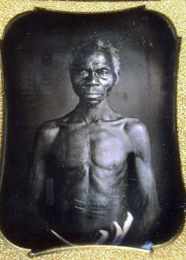 Renty, a South Carolina slave, was photographed in the 1850s by Harvard biologist Louis Agassiz, whose ideas were used to support the enslavement of Africans in the United States. Renty's ancester, Tamara Lanier, is suing Harvard University over ownership of the photograph.
