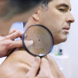 A white man in his forties has a mole on his neck examined by a dermatologist.